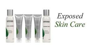 Exposed-Skin-Care-Kits-Acne-Treatment