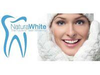 Mobile laser teeth Whitening