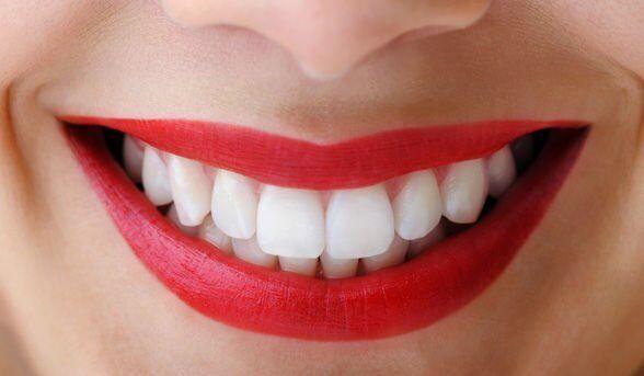 Full time qualified dental nurse