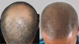 Hair loss camouflage men and women,scalp micropigmentation,hair treatment 50%off London,Kingston
