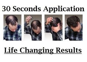 Quick and Easy Solution For Your Hair Loss Problems. Try it Now Kitchener / Waterloo Kitchener Area image 3