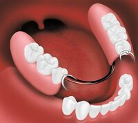 FREE DENTURE CLEANING SERVICES