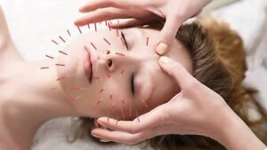 GET YOUR FREE ACUPUNCTURE ASSESSMENT TODAY