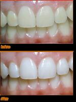 Professional Cosmetic Teeth Whitening