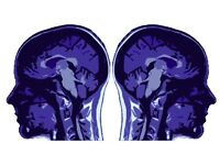 Non-identical TWINS wanted for fMRI research participation