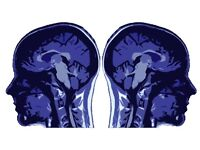 TWINS wanted for fMRI research participation