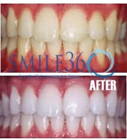 Smile360 Smile Saturday Teeth Whitening Treatment