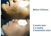 Acne Facial with Blue Light Therapy @imaans - $100