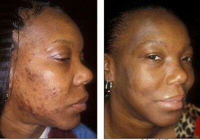 2 Acne Treatment Soap Scars Blemishes Bruises Wrinkles Free Fast Results