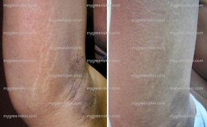 Remove-Old-White-STRETCH-MARKS-Scars-Fast-Pro-Medical-Micro-Crystals