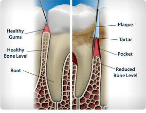 Professional Teeth Whitening and Dental Cleanings Kitchener / Waterloo Kitchener Area image 2