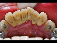 DENTAL CLEANING OFFERED FOR CLIENTS WITH TARTER BUILDUP