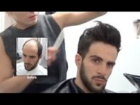 Men's Hair Loss Model required for hair piece video in Edinburgh