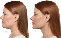 Injectable Models Wanted For Belkyra(Kybella)