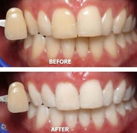 Teeth whitening London Christmas sale $59 Gift Certificates