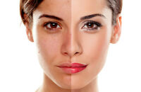 MICRODERMABRASION with FACIALS$65  ,