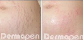 Dermapen Skin Rejuvenation Xmas Offer