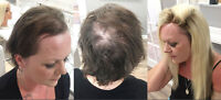 CALGARY HAIR REPLACEMENT SALON-Woman Hair loss&thinning Solution
