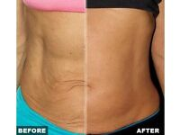 Need to treat loose skin/cellulite? RF Skin tightening treatment has incredible PROVEN results