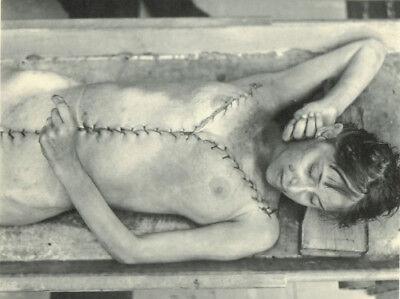 Antique Post Mortem Autopsy Photo 194 Bizarre Odd Strange