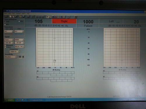 Siemens UNITY 2 Audiometer rem and hit software No equipment ! Read description
