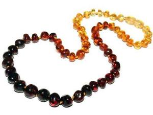 Best Selling in Amber Necklace