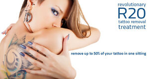 TATTOO REMOVAL - 4 TIMES FASTER! Stratford Kitchener Area image 6