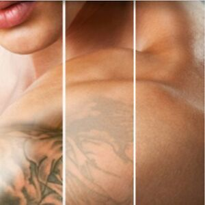 TATTOO REMOVAL - 4 TIMES FASTER! London Ontario image 8