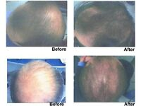 Hair regrowth business for sale