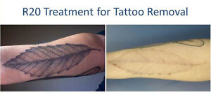 TATTOO REMOVAL - 4 TIMES FASTER! Stratford Kitchener Area image 3
