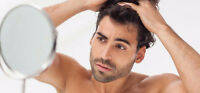 Perte de Cheveux, Calvitie