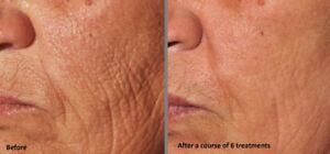 Microneedling and skintag removal