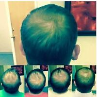 Hair Growth Treatment - Thicker Healthier Hair in 90 Days!
