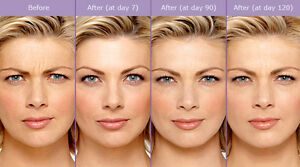 Offering cosmetic botox at $8/Unit!!!