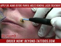 Apply Dr. Numb before painful Moles Removal Laser Treatment