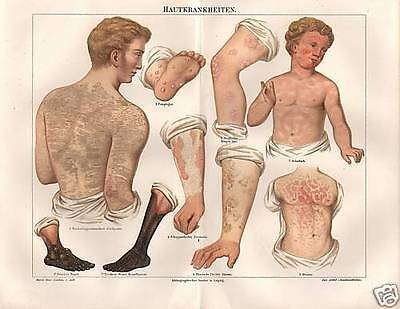 Hautkrankheiten Arzt  Medizin Masern Scharlach   Lithographie  von  1895