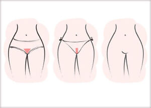 BRAZILIAN LASER HAIR REMOVAL 35$ /Session