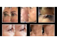 Fibroblast Skin tightening treatment. Gets rid of wrinkles, crows feet and stretch marks