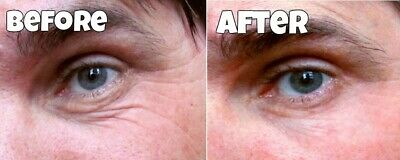100 Treatments remove eyebags anti-ageing wrinkle instant facelift cream serum