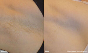 $69 SOPRANO XLice PAINFREE LASER HAIR REMOVAL- 6 session package