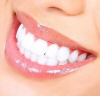 Blanchiment dentaire GRATUIT- FREE teeth WHITENING!