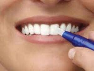 Blanchissant pour les dents, effet en quelques jours!