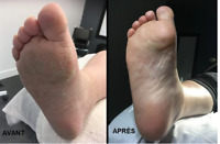 technicienne en hygiène et soins des pieds