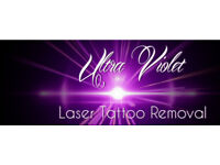Laser Tattoo Removal Starting at £20 per session