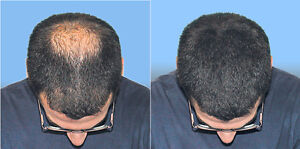 We Have A Solution For Your HairLoss Problems. Try it Now. Belleville Belleville Area image 1