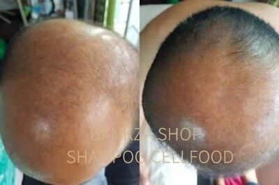 The BEST HAIR LOSS Regrowth Treatment For Men and Women ingredien 2 Month