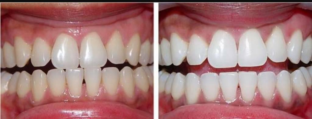 Laser teeth whitening £30