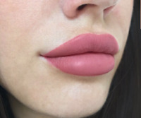 Lips Augmentation with Juvederm , Permanent makeup, Promotion!