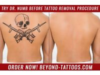 Try Dr. Numb before pain full tattoo removal procedure