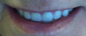 DENTURES ONSITE. NO EXTRA COST FOR HOME VISIT